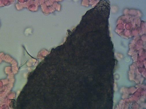 osteopenia badanie na żywej kropli krwi